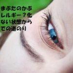 目頭・まぶたのかぶれはアレルギー?化粧できない状態から完治までの道のり